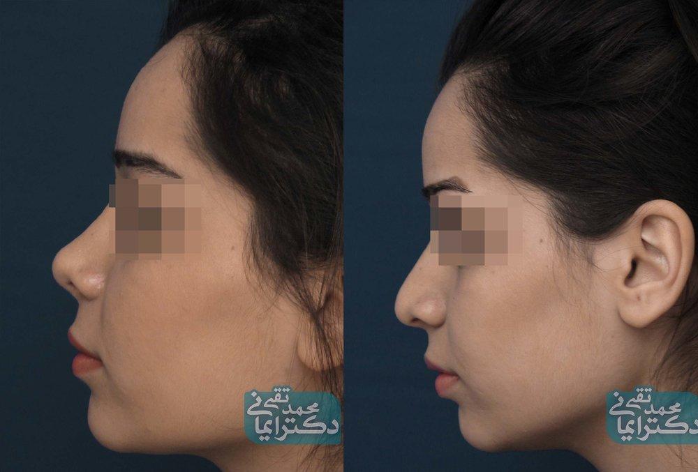 نمونه عملهای زیبایی بینی