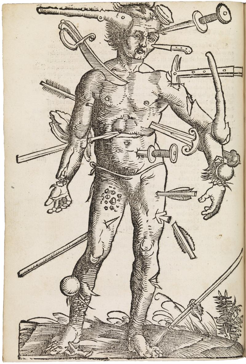 'Wound Man' from  Feldbuch der Wundarznei  (Fieldbook of Surgery), written by Hans von Gersdorff in 1531