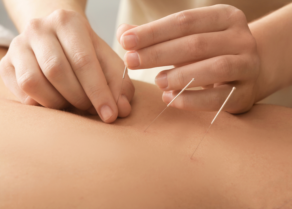 hands holding acupuncture needles on someone's back