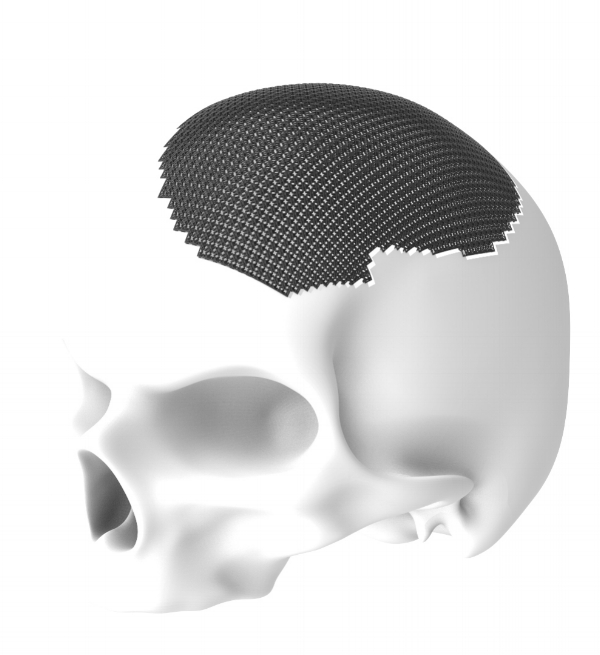 Example of a Cranial Implant