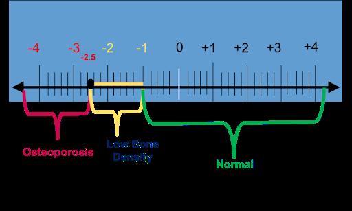 bone-density-range.png