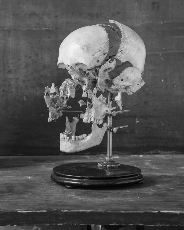 LVI / Exploded human skull, artistic anatomy demonstration tool from the early 20th century (Budapest, Hungary) / Human, 2016 by ©  Gábor Arion Kudász , courtesy of the artist