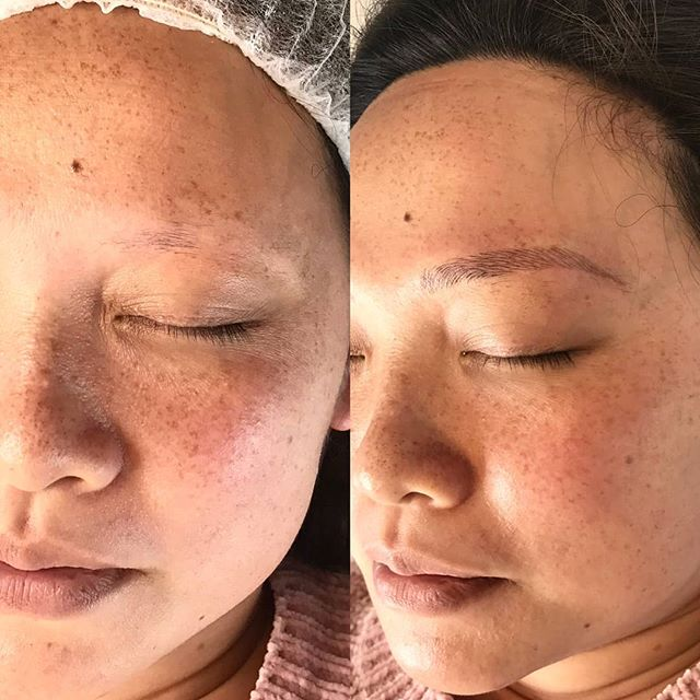 Before & After our micro-blading procedure 🙌 We love creating new brows for our clients! This is only stage 1 of two procedures . We will post final result over the next few weeks.  For all Bookings & enquiries 📧 info@bystella.com.au 📞 1300 001 218