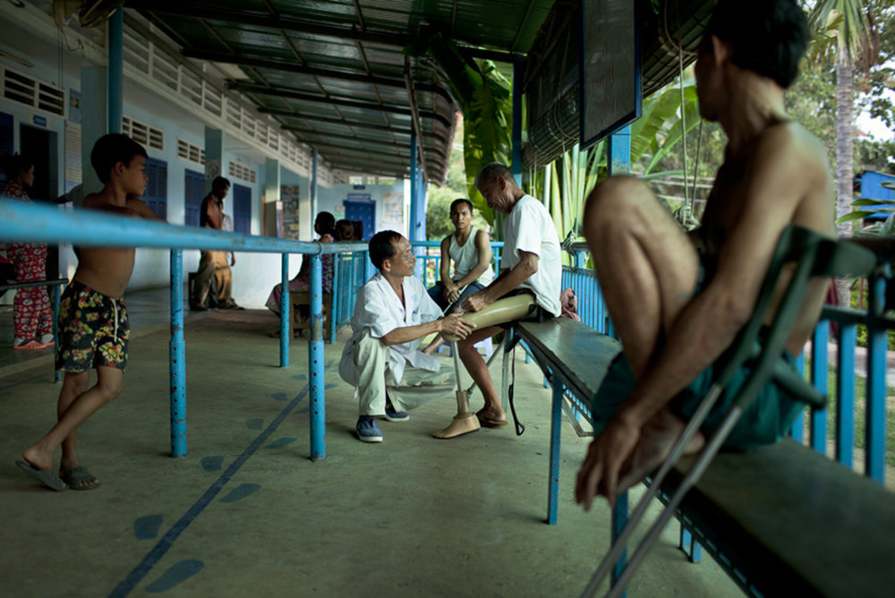 Nov. 15, 2011 - Kampong Cham, Cambodia. A patient is fitted with a prosthesis at the HI rehab centre. � Nicolas Axelrod for HI