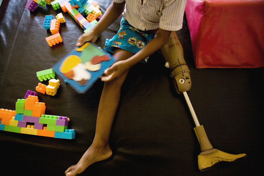 Oct. 23, 2008 - Kampong Cham, Cambodia. Phet Chinda (12), plays games while wear a prosthesis, he is learning to walk again after a motorbike accident. � Nicolas Axelrod for HI