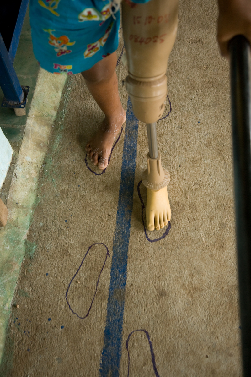 Oct. 21, 2008 - Kampong Cham, Cambodia. Phet Chinda (12), learns to walk again after a motorbike accident. � Nicolas Axelrod for HI
