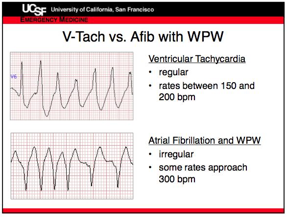 Vtach vs Afib in WPW