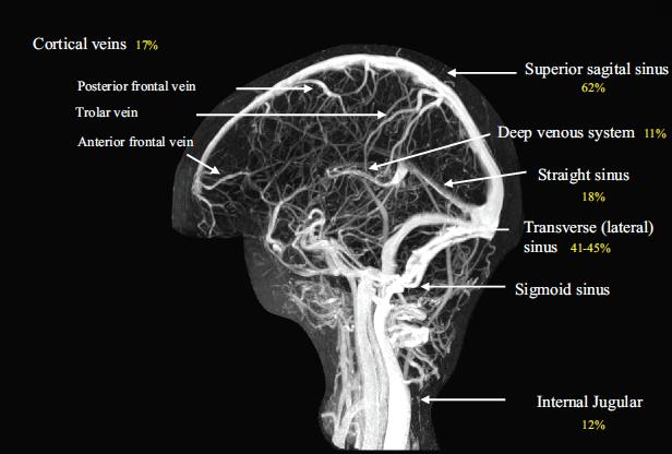 MRV-of-Cerebral-Venous-System-Saposnik-2011.png