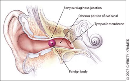 potd anatomy ear.png