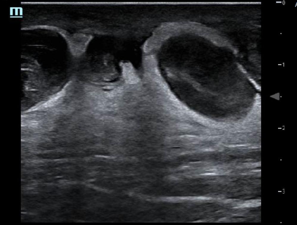thrombophlebitis.png