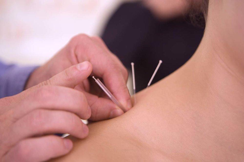 acupuncture_shoulder_image.jpg