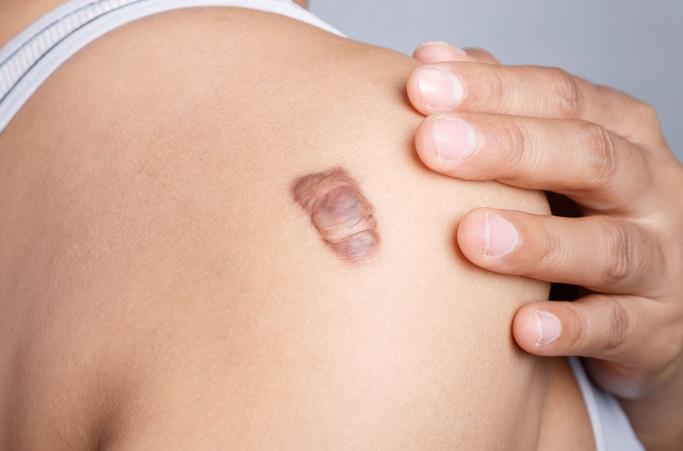 amichay-keloid-scar.jpg