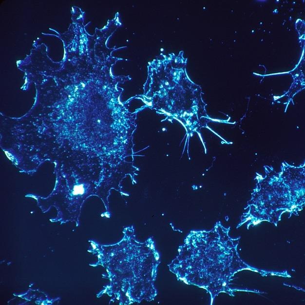 Beacon Cancer Cells