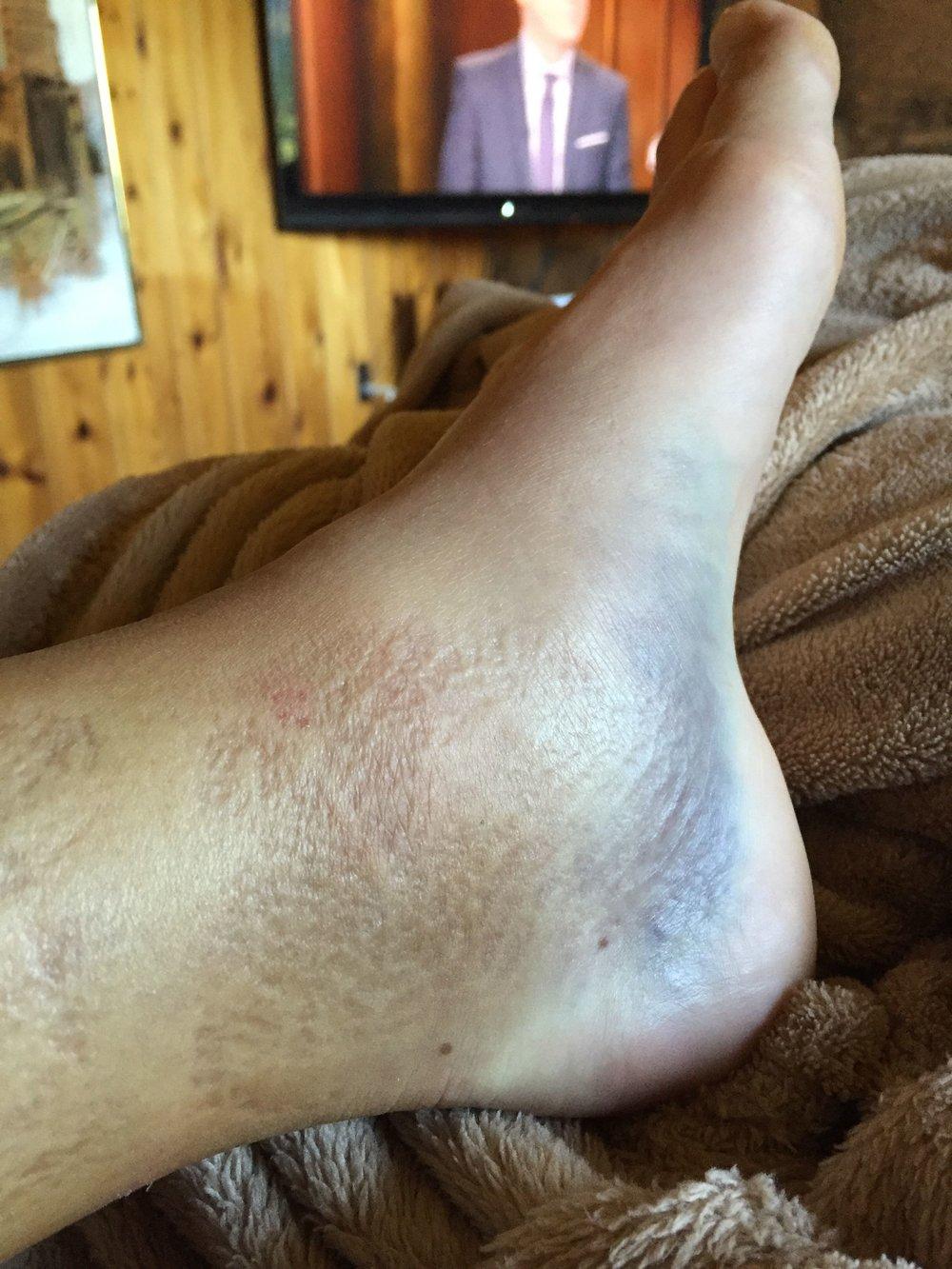 ankle-2.jpg