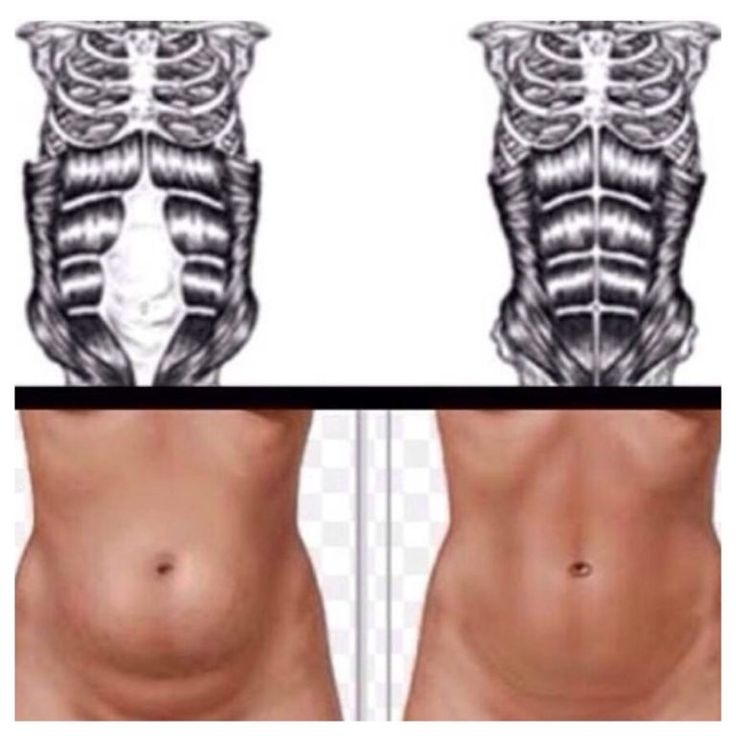DIASTASIS RECTI PHOTO SOURCE https://www.bloglovin.com/blogs/diary-a-fit-mommy-14421735/complete-guide-to-getting-rid-diastasis-recti-4897798406