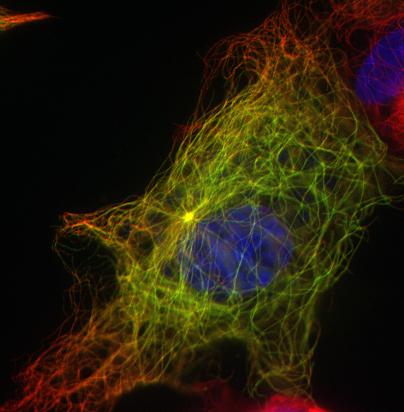 en Vert : ATIP3 - en Rouge : Microtubules - en Bleu : ADN   Crédit photo : Lydia Ghouinem, Institut Cochin, Paris