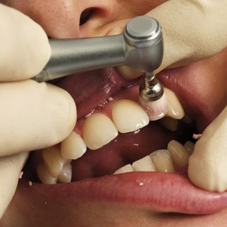 Dental Cleanings -