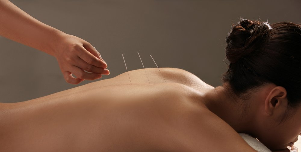 Acupuncture - Acupuncture is a therapeutic and relaxing way to help resolve common everyday ailments including aches, pains, stress, general wellness, and more. Very thin needles are inserted at strategic points on your body. A key component of Traditional Chinese Medicine, Acupuncture is commonly used as a complimentary wellness therapy for Holistic Health.