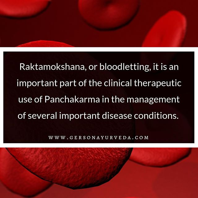 """""""Raktamokshana, or bloodletting, it is an important part of the clinical therapeutic use of Panchakarma in the management of several important disease conditions. It is a safe and essential part of the treatment protocol for patients with vitiated Pitta dosha or Rakta dushya sammurchana (mixing of excess Pitta into the blood) which is chronic or doesn't respond to gentler interventions. It also is useful for specific Vata- and Kapha-related conditions. One of the general categories of disease which requires the use of raktamokshana is Visarpa, an Ayurvedic term literally meaning """"spreading, diffusing,"""" which correlates to a variety of modern conditions such as herpes labialis, herpes genitalis, herpes zoster (shingles), erysipelas, bullous pemphigoid, cellulitis, blisters, and chronic dermatitis.""""⠀ ⠀ To Learn More Please Visit: https://buff.ly/2OzxAyZ⠀ ⠀ #ayurveda #ayurvedicmedicine #ayurvedicdoctor #bloodletting #panchakarma #disease #pitta #herpes #shingles #cellulitis #blisters #dermatitis #chronicdermatitis"""