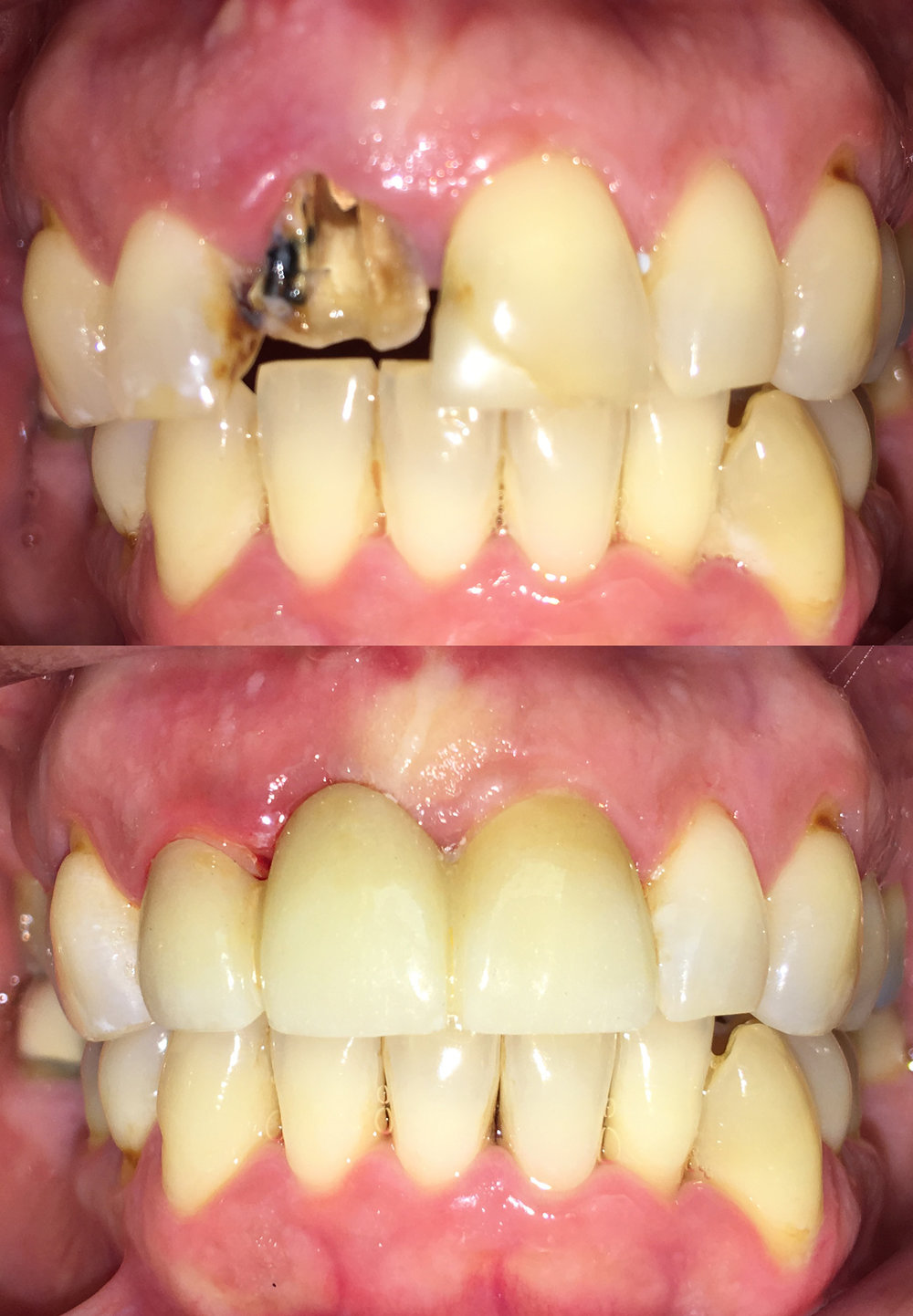 Extraction and bridge to replace missing tooth