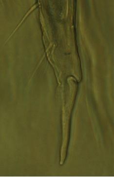Above:  Xenylla humicola  mucro-dens junction