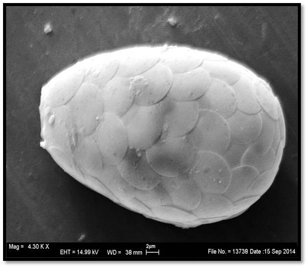 Testate amoebae Tracheleuglypha