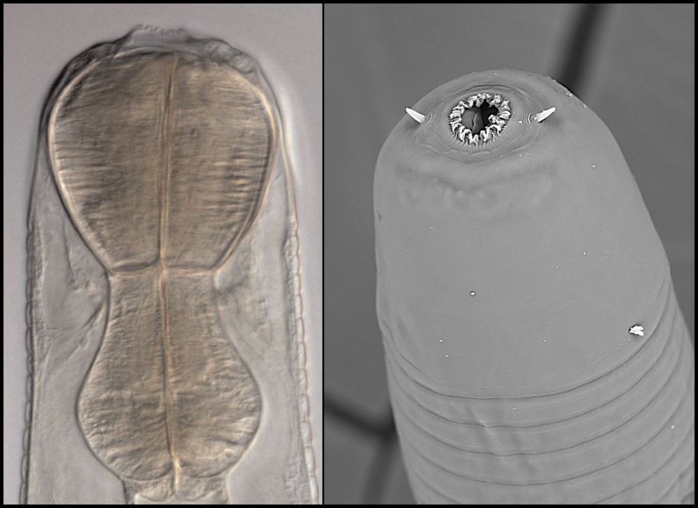 Coronostoma claireae  (a predatory nematode) – DIC image on left and SEM on right. Note the lack of a grinding valve, the muscular esophagus, very large first annule and the projecting, conical amphids.