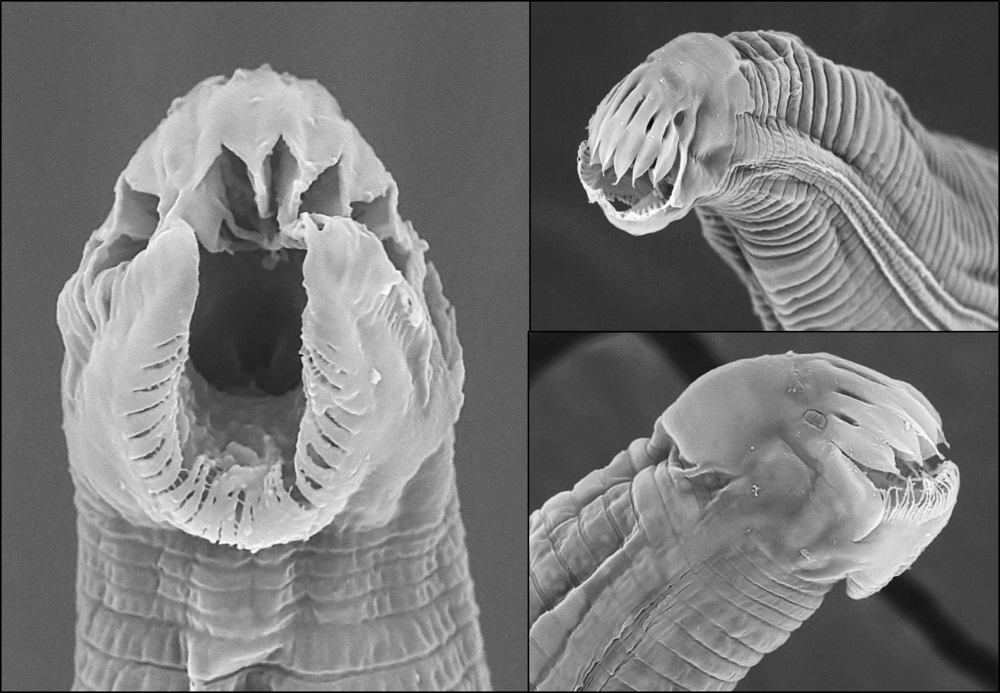 Golovatchinema  sp. – SEM of the 3rd stage juvenile. This juvenile stage bears no resemblance to the adults.