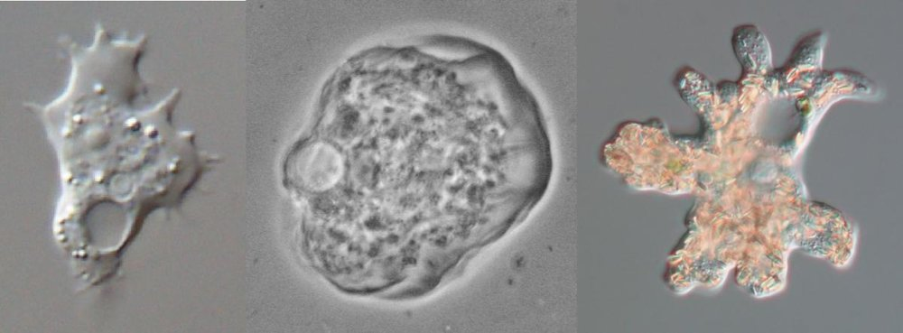 Some common soil protists, here represented by three common amoebae. From left to right  Acanthamoeba  sp.,  Thecamoeba similis  and  Deuteramoeba mycophaga . Pictures provided by Alexey Smirnov.