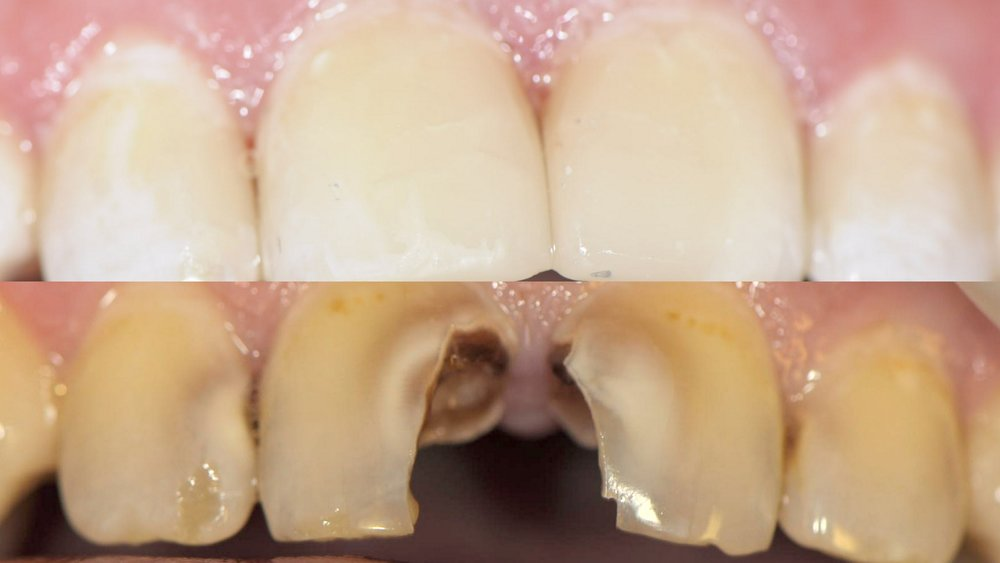 Before & After Dental Image