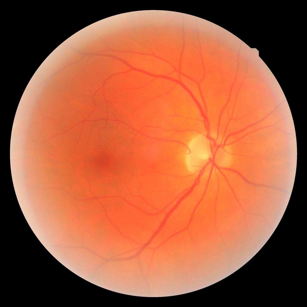 Retina Photo