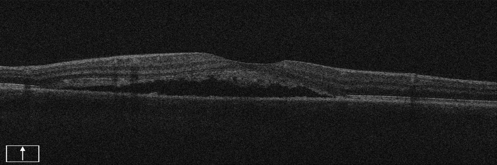 Young person with swollen retina (macula).