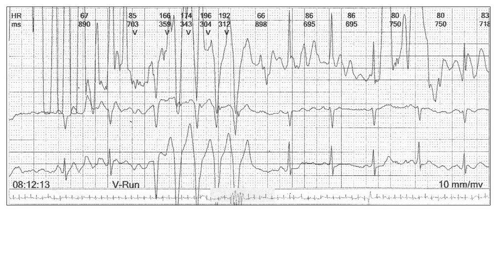 Image 2: In this example, you require three channels to diagnose artefact and exclude ventricular tachycardia.