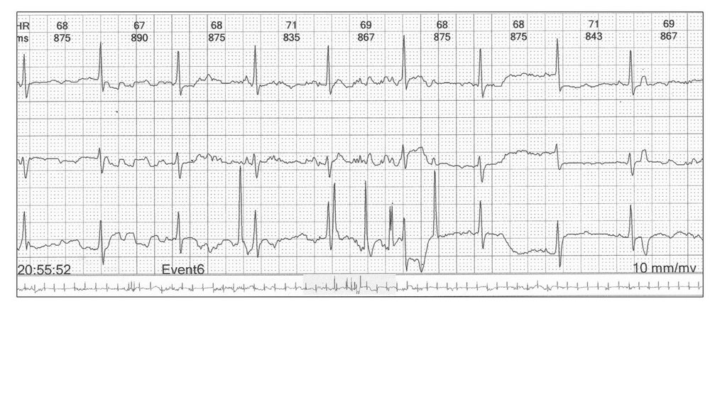 Image 3: The trace above demonstrates that you need all three channels to confirm sinus rhythm.