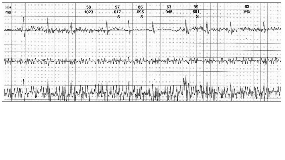Image 4: This example reveals you need all three channels to confirm sinus rhythm.