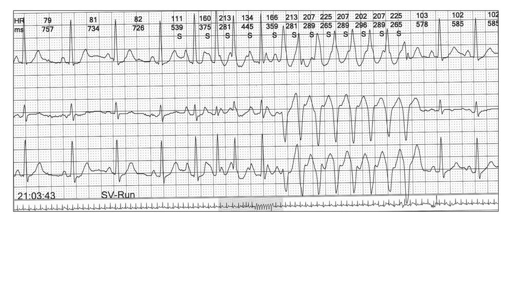 Image 7: This shows a run of an atrial tachyarrhythmia with aberration. Difficult diagnosis with only  one channel.