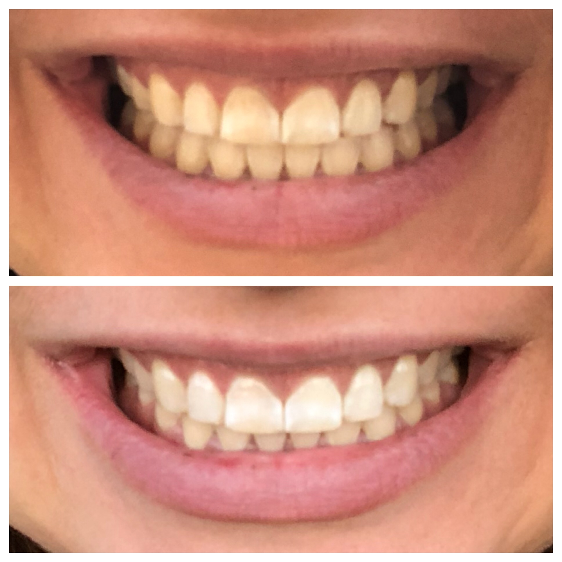 Before & After Charcoal Powder Teeth Whitening