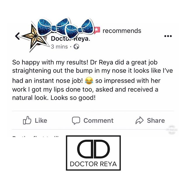 Another 5 Star Facebook Review, this time for a lovely client who I perfomed a Non Surgical Rhinoplasty on! Thank you 🙏 •  #nonsurgicalnosejob #nonsurgicalrhinoplasty #dermalfillersessex #cosmeticdoctor #aestheticdoctor #clientreview #essex #walthamabbey #cobbinsbrooksmileclinic