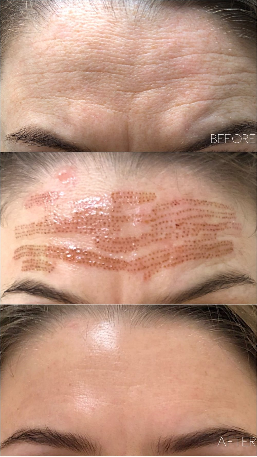 AskCares candid client results at one month. 1 Fibroblast treatment + 2 follow up peels have been performed.