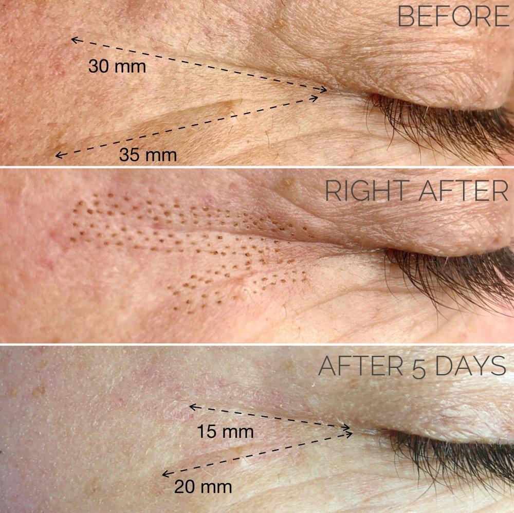 Fibroblast wrinkle remover