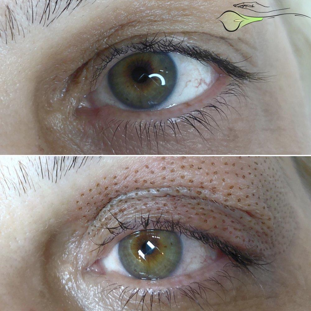 AskCares client, 1 treatment of Fibroblast