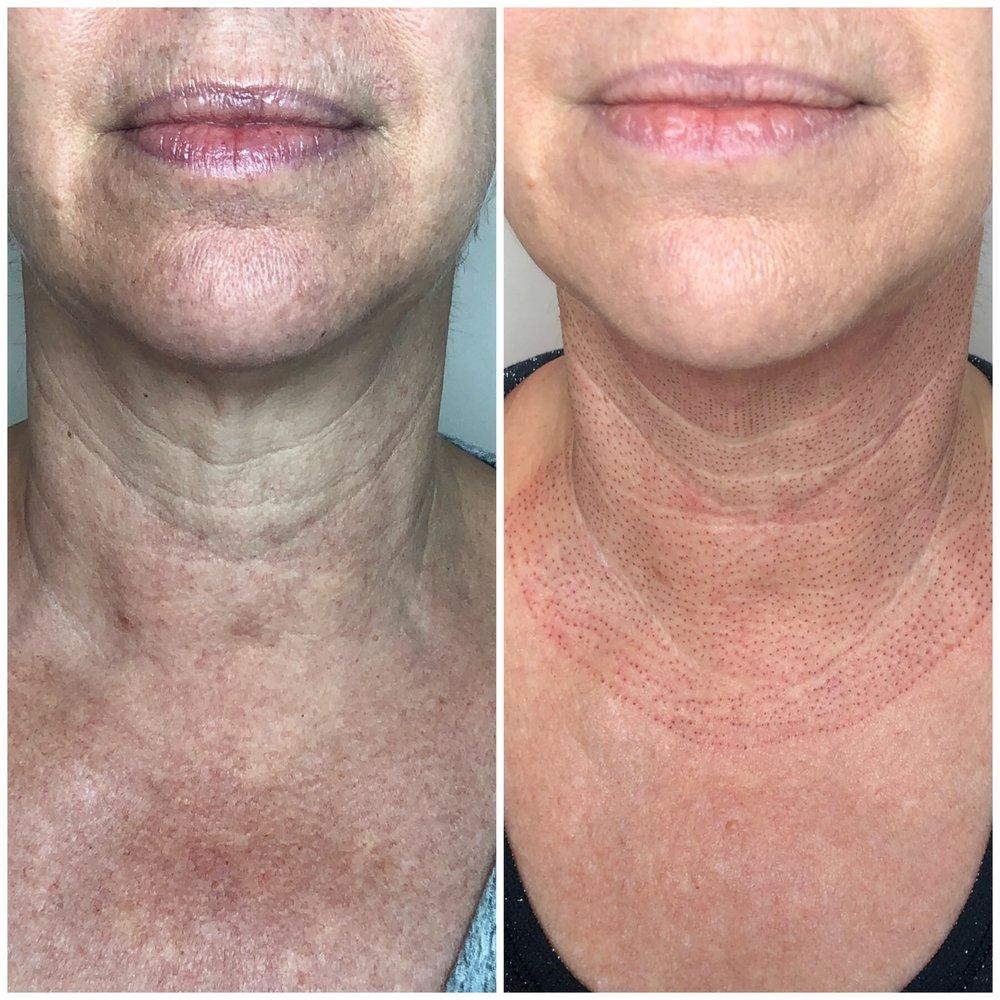 Firbroblast skin tightening
