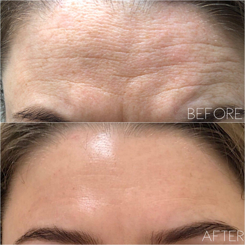 Fibroblast Skin Tightening — AskCares • Aesthetic Skin Care, Lashes