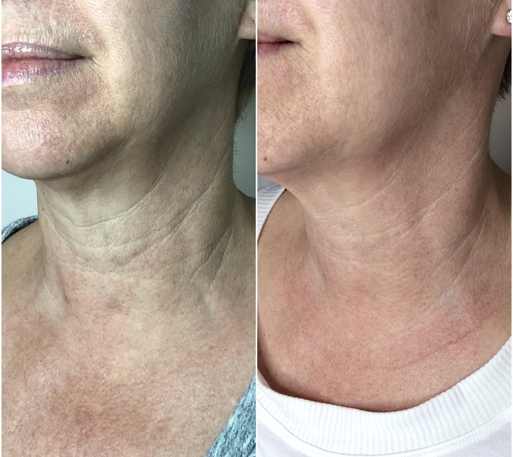 RIGHT: Before LEFT: After  AskCares client, 1 treatment of Fibroblast, results still improving