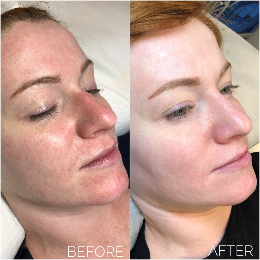 AskCares client, results after 2 BB Glow treatments.