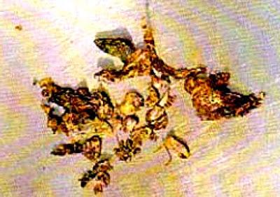 Plomo Transmutado de Merelle