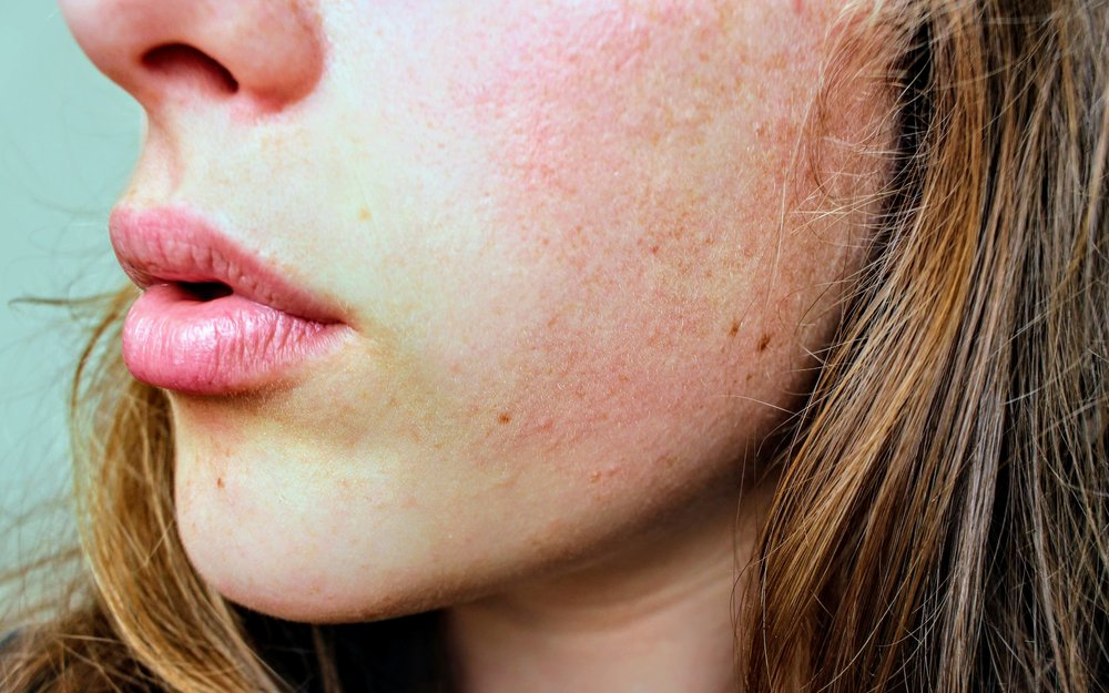 Skin SUFFERING from rosacea
