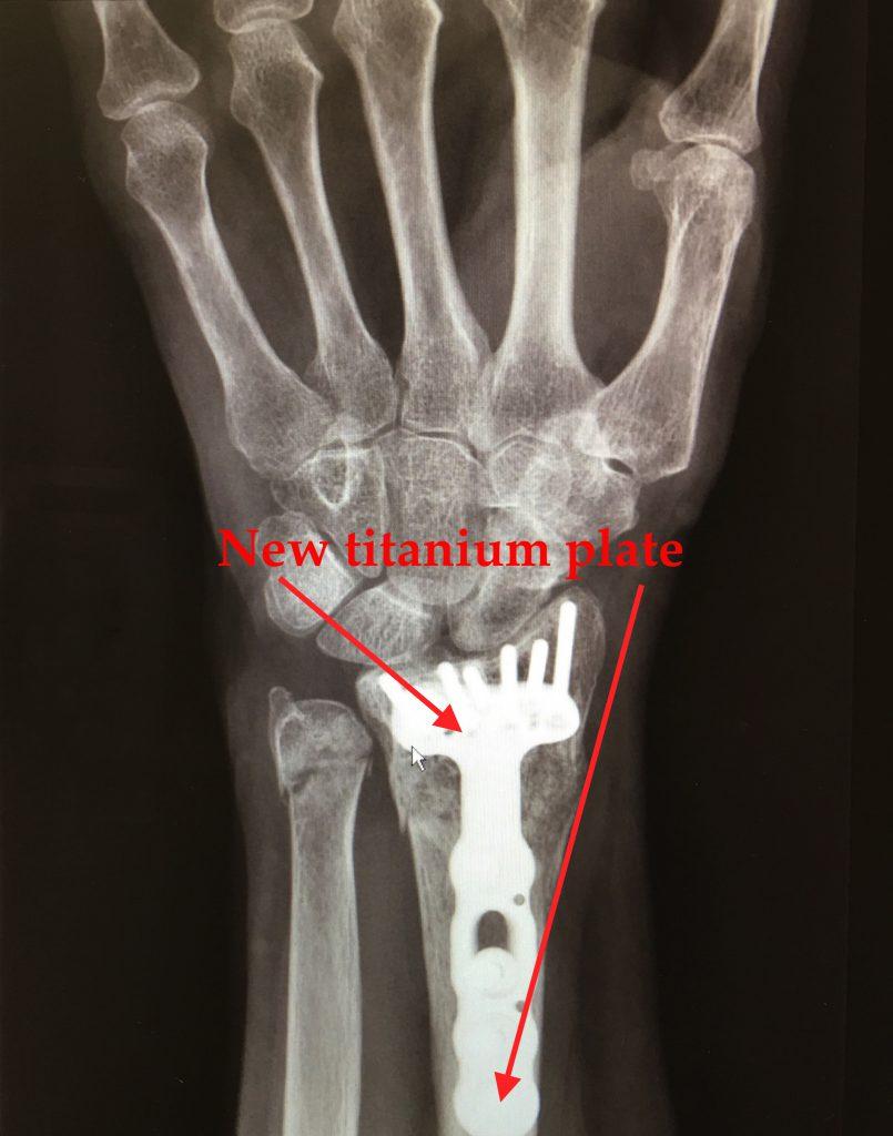 Left Wrist x-ray
