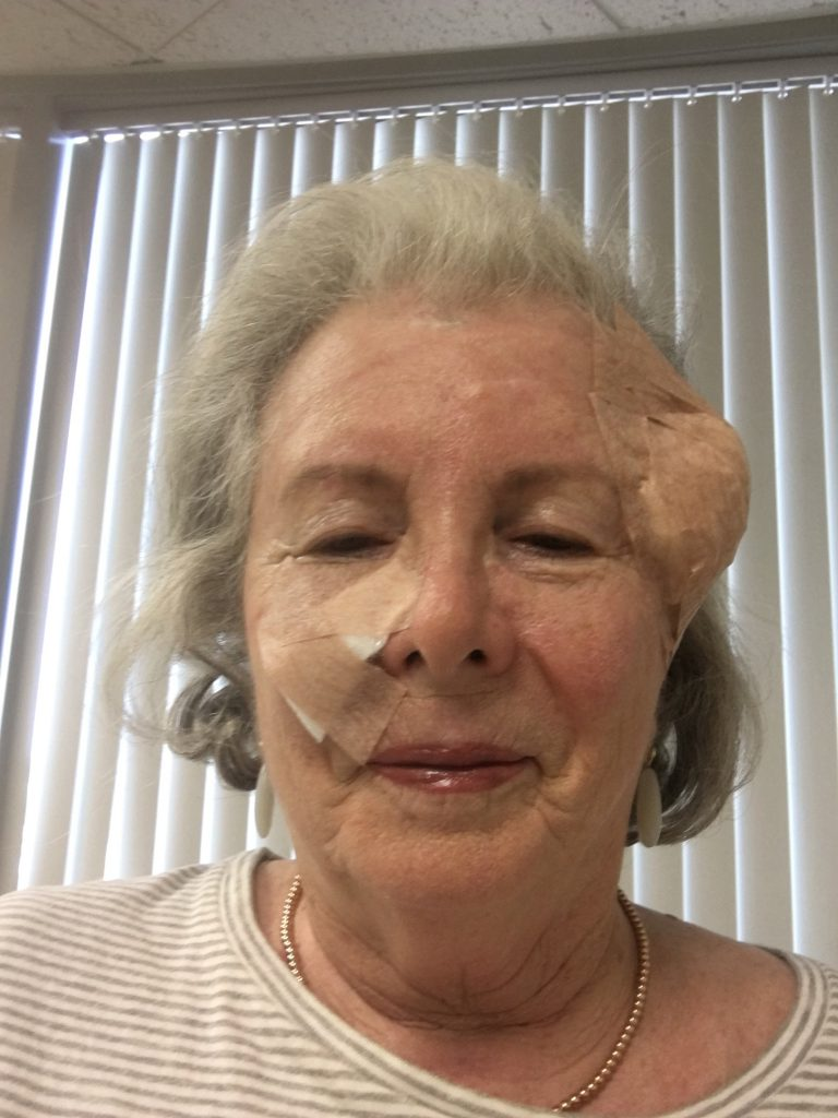 Sandra having MOHS skin cancer surgery on her face.