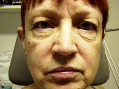 Facelift-Eyelid-FatStem-Cell-Before-front-400x3001.jpg